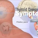 Vitamin D and its effect on thyroid conditions